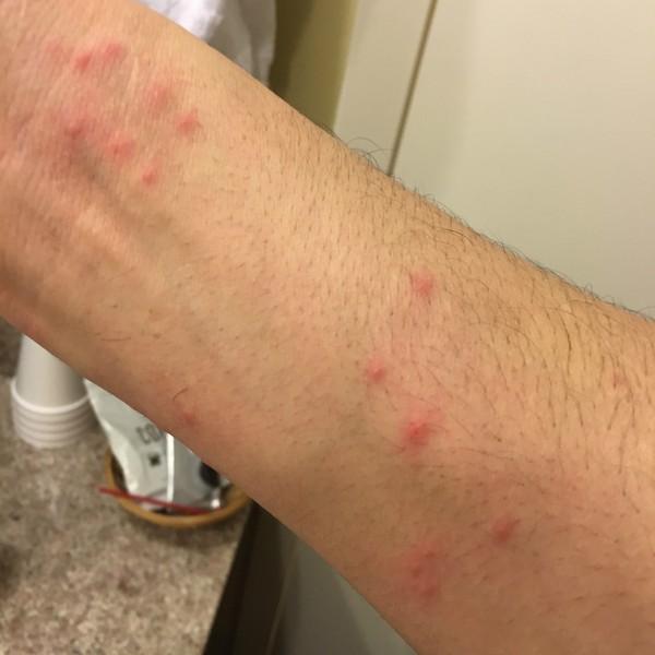 Latest Hayward California Bed Bug Reports