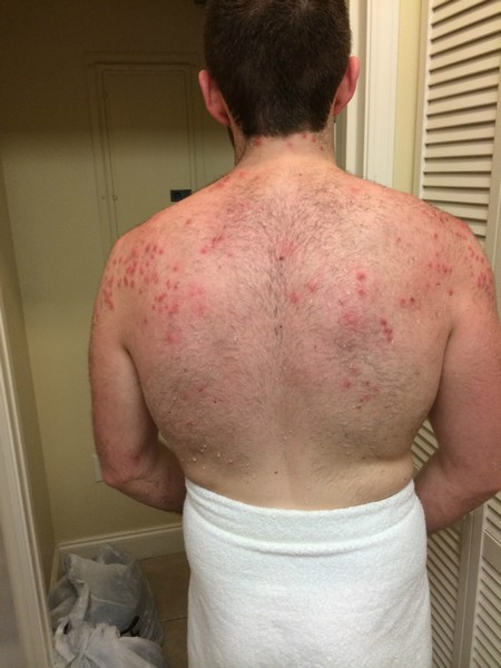 Blue Heron Beach Resort Bed Bug Reports