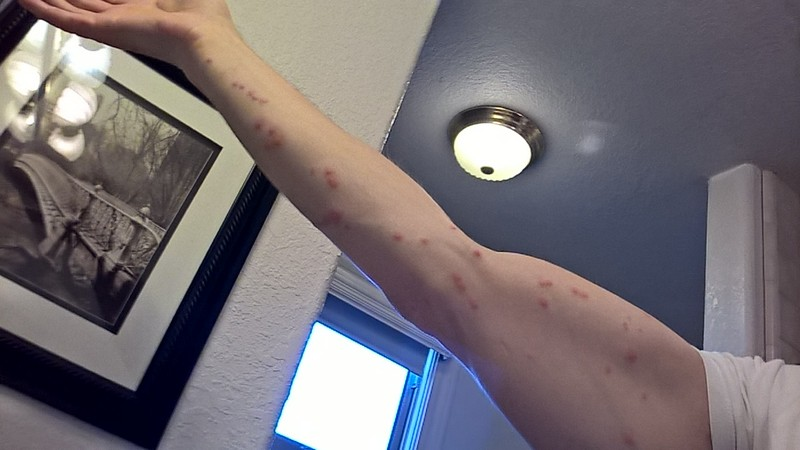 phoenix az bed bug hotel and apartment reports best western innsuites hotel and suites
