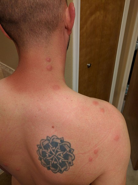 Duluth GA Bed bug Hotel and Apartment Reports